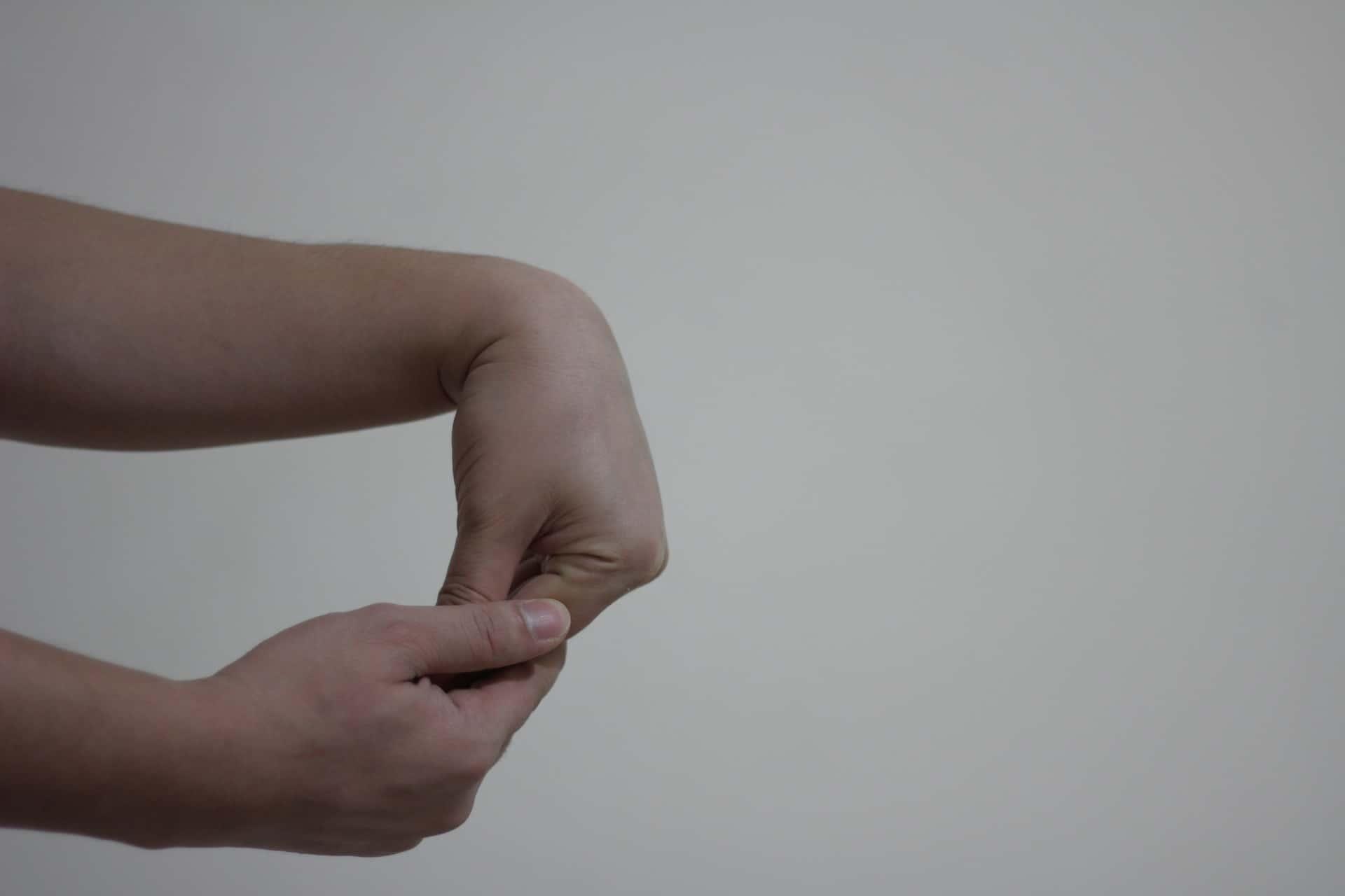 RHEUMATOID ARTHRITIS - Physical activity - image5
